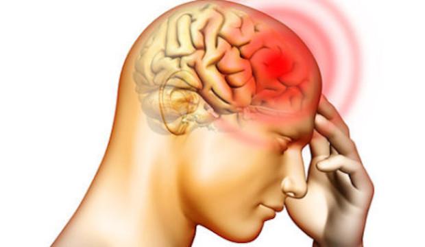 Nuova cura del mal di testa, un rimedio efficace