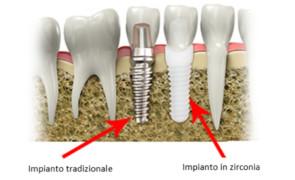 Impianti dentali: zirconia vs titanio.