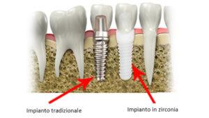 impianti_dentali_zirconia_cliniche_dentali_iris