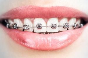 apparecchio dentale