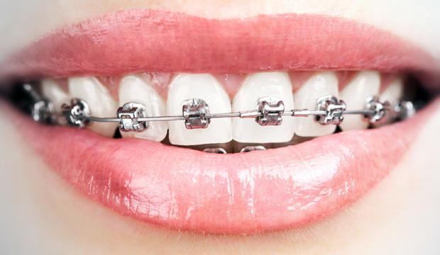 A cosa servono gli apparecchi dentali?